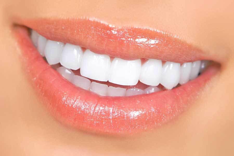 Косметическое отбеливание зубов в Харькове