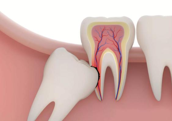 удаление 8 зуба