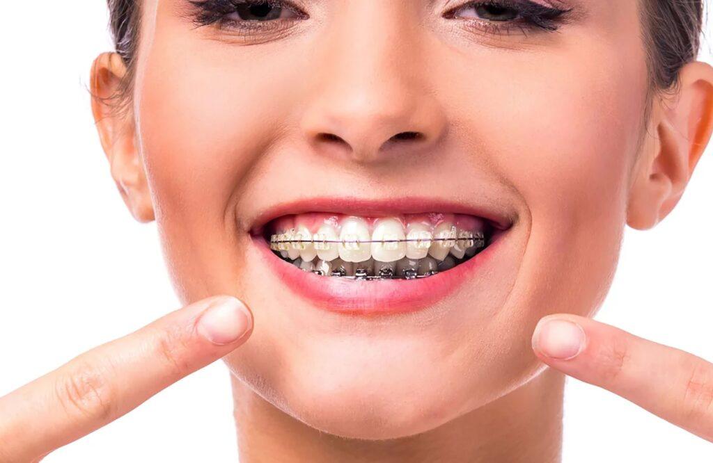брекеты ортодонт харьков